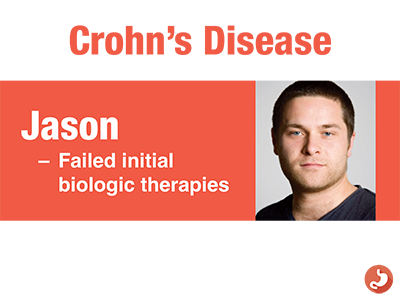 Thinking about Biosimilars in Patients with Crohn's Disease Failing an Initial Biologic Therapy